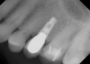 dental implant 4