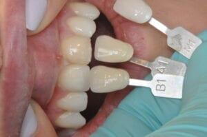 Veneer Shade 32 Pearls Seattle Dentistry