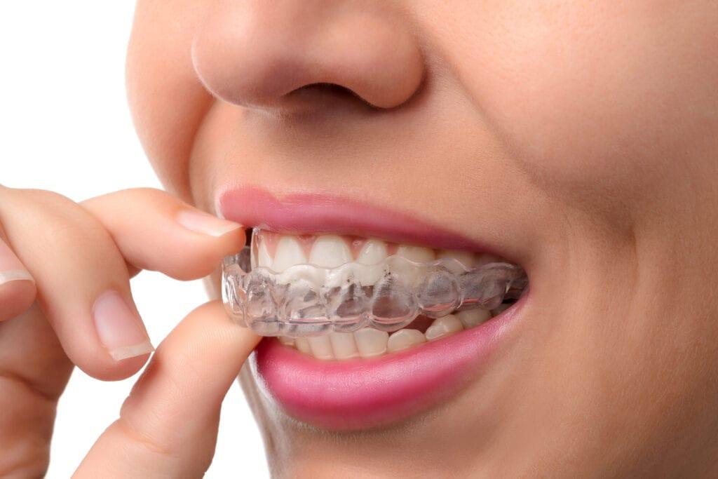Seattle Invisalign Dentist